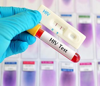 HIV-treatment-stops-spread-of-the-virus-to-partners